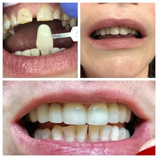 close-up of patient's teeth before and after crowns
