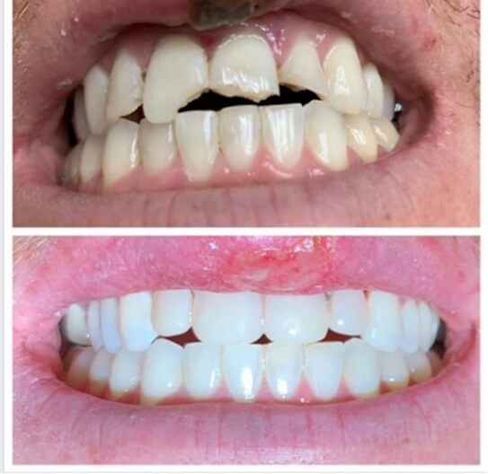 close-up of patient's smile before and after emergency dental work