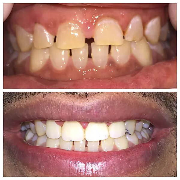 close-up of patient's smile before and after orthodontic treatment